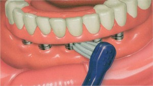 ImplantSupportedCompleteDenture