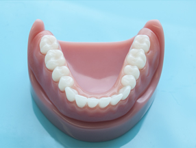 Dental prosthesis implants in Gatineau